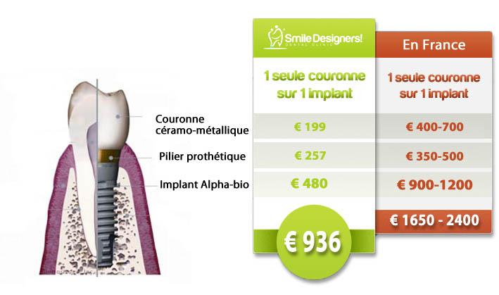 Photo exemple de devis pour implant dentaire